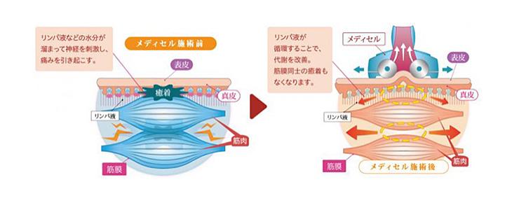 筋膜リリースの仕組み